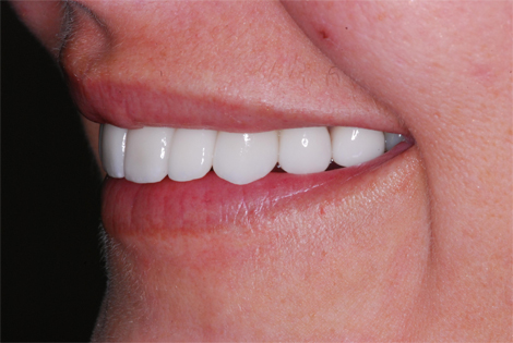 henry-matthews-dds_patient-after-completed-ortho-implants-porcelin-crowns-jb-jpg