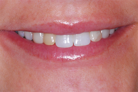 henry-matthews-dds_patient-smile-after-completed-ortho-implants-jb-jpg