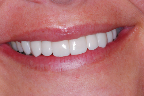 henry-matthews-dds_patient-smile-after-completed-ortho-implants-porcelin-crowns-jb-jpg